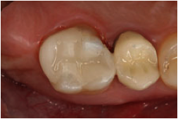 toothcolorfilling1
